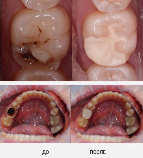 Применение Doctor Dent